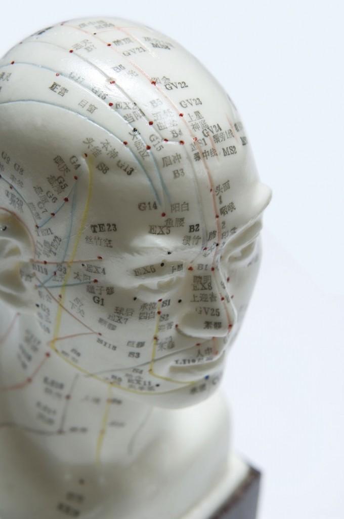 Surrey Acupuncture FAQs